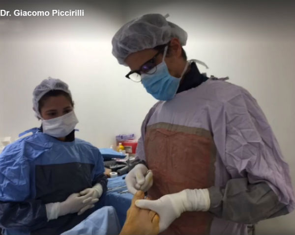 Cirugía Percutánea